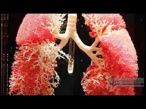 Hipertensión riboksin