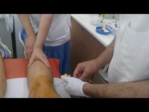 Un osteopat tratează displazia de șold