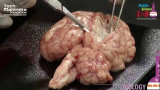 Dissection of a Brain