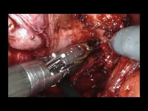 Clínica para el tratamiento del cáncer de próstata