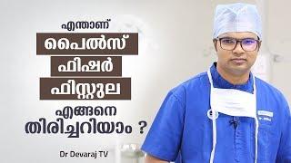 പൈൽസ്, ഫിസ്റ്റുല, ഫിഷർ,എങ്ങനെ തിരിച്ചറിയാം ? Malayalam Health Tips