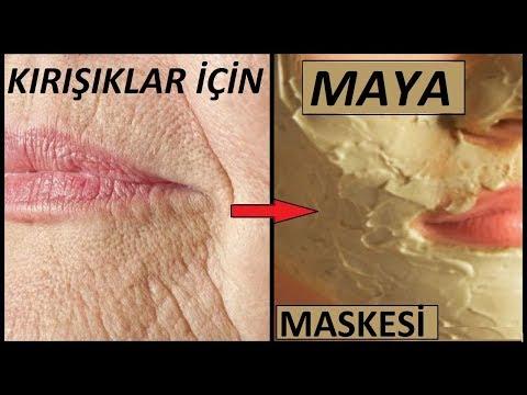 A bal csípőízület fertőző allergiás izületi gyulladása