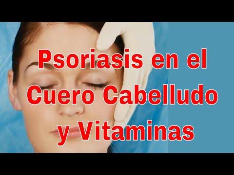 La psoriasis del cuero cabelludo y la inflamación
