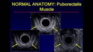 Ultrasound Examination of the Anal Sphincter
