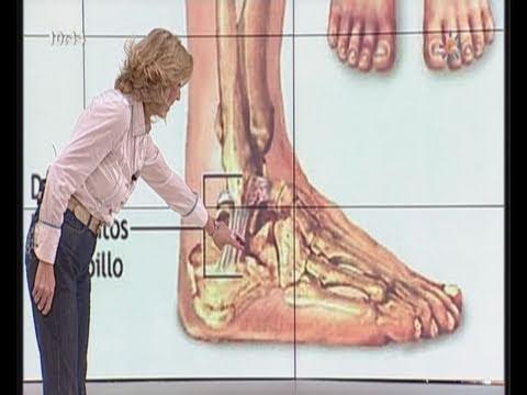 Recuperación después de la artroplastia de rodilla en un sanatorio
