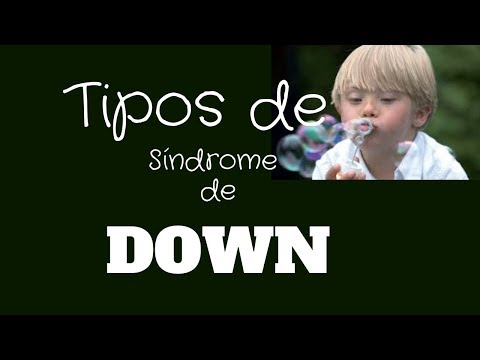 Watch video Tipos de síndrome de Down