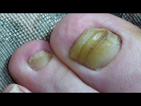 Halamang-singaw sa ginagamot kuko binti ng suka acid