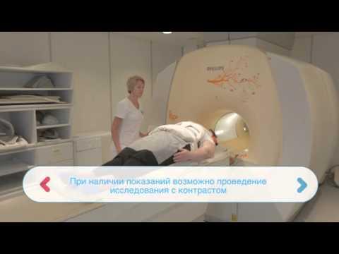 Аденома головного мозга при простате