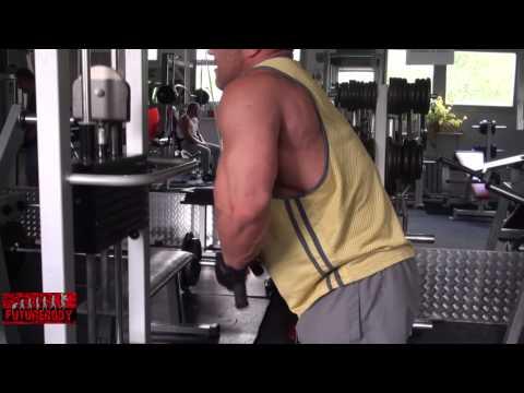 Specjalne ćwiczenia na wzmocnienie mięśni brzucha, jeśli masz przepuklinę