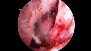 Physeal Sparing ACL Reconstruction