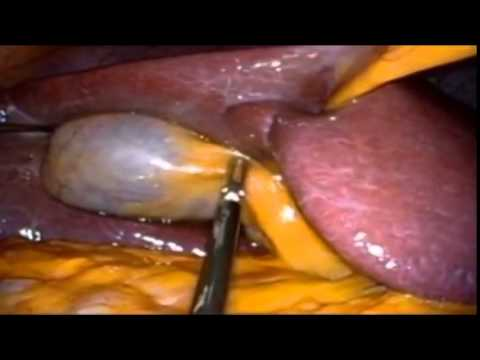 Es können die Würmer der Truthähne