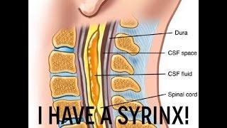 I have Syringomyelia - cyst in spinal chord