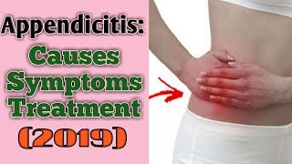 What is appendix? What is appendicitis? What is appendix pain? Causes  Symptoms  Treatment (2019)