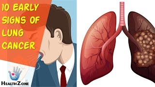 10 Early Signs Of Lung Cancer