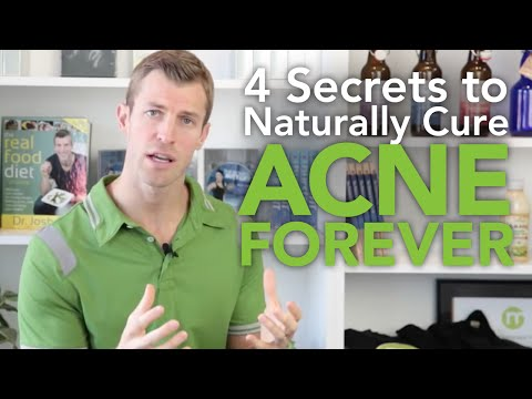 Video How to Cure Acne: 4 Secrets to Naturally Getting Rid of Acne Forever
