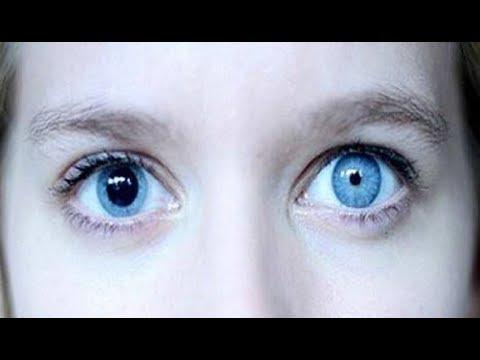 midriaza afectează vederea