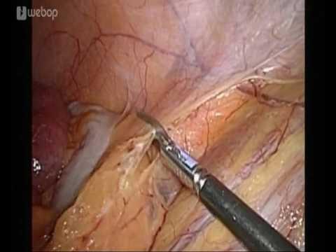 Die glatte Muskulatur der Prostata