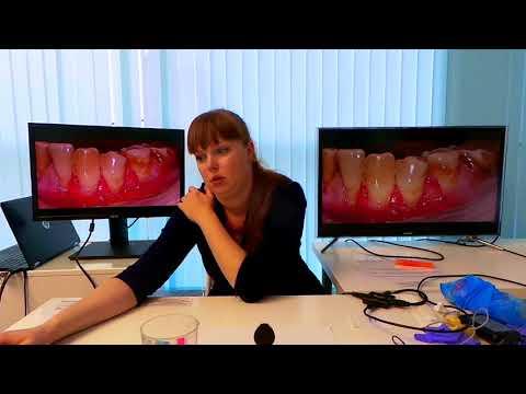 Хирургическое лечение рецессий десны в области зубов и имплантатов. Часть 19