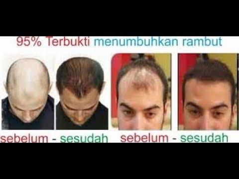 Video TERBUKTI!! 10 Cara Menumbuhkan Rambut Botak dengan Cepat Secara Alami