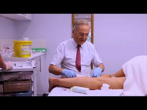 Video varicosity medicina