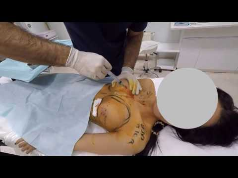 Die Folgen der Korrektion der Brust