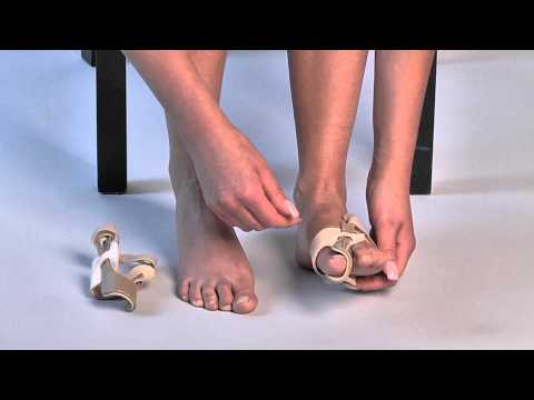Ploskovalgusnaya deformacja stóp u dorosłych