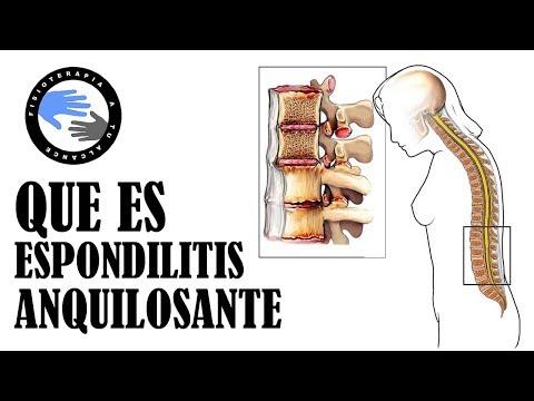 La lesión en la rodilla y su fijación