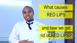 CAUSES OF RED LIPS THEIR TREATMENT, why are my lips red, does HIV cause it, chapped, cracked lips