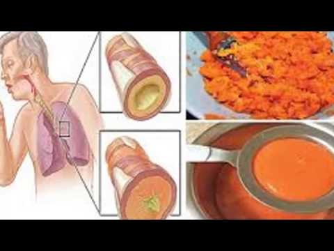Προμηθειών για την απελευθέρωση αντλίες ινσουλίνης για παιδιά
