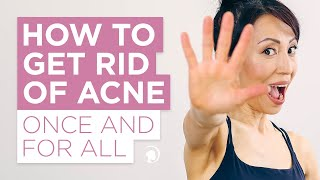 How to Get Rid of Acne Once and For All