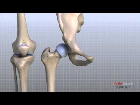 Ból pleców i wskaźnik temperatury