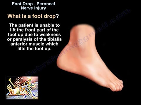 Stopa opadająca - uszkodzenie nerwu strzałkowego