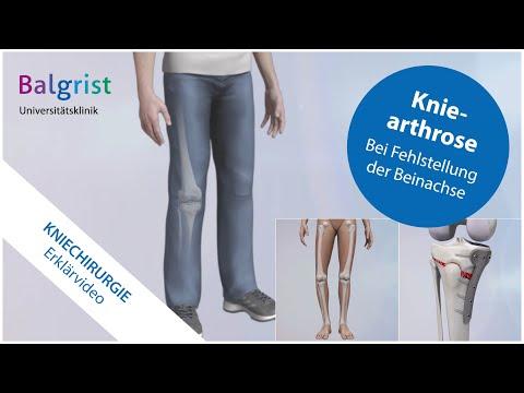 Volksmedizin Behandlung von Schmerzen in den Gelenken der Finger
