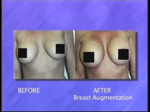 Progesterone Cream breast enlargement