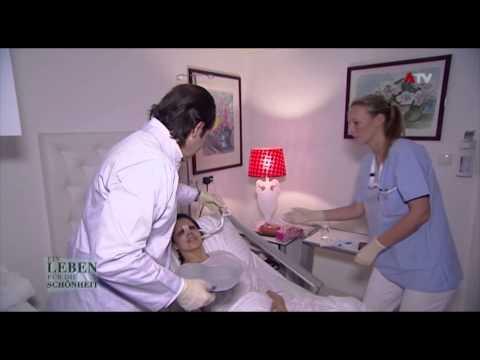 Prostata-Adenom Behandlung Castoreum