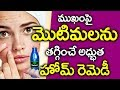 మొటిమలు వేంటనే తగ్గాలంటే.. I Pimples Problem Solution in Telugu I Motimalu I Health Tips in Telugu