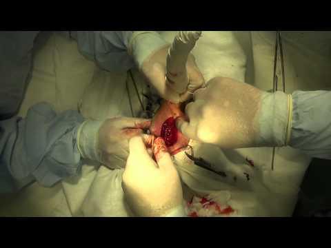 Хирургическое лечение медиальной нестабильности плечевого сустава