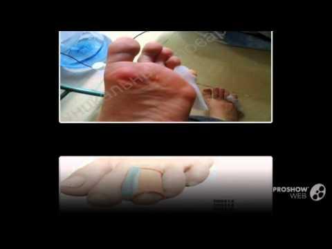 Как избавиться от косточки у большого пальца ноги