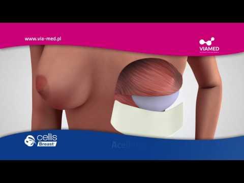 Jak powiększyć piersi dla dziewcząt w wieku 12 lat