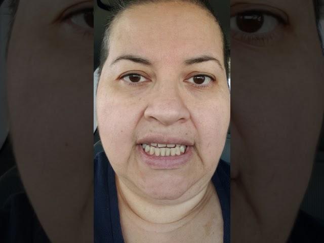 My story with TACS it is between HC(Hemecrania continua)/TN (trigiminal neuralgia)