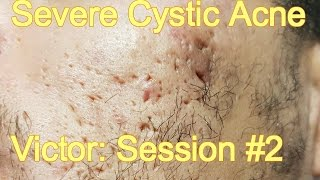 Severe Cystic Acne - Victor: Session #2
