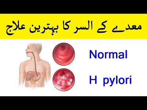 Ulcer Treatment - Stomach Ulcer Natural Remedy - H Pylori