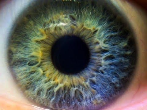 Vindeca miopia senila