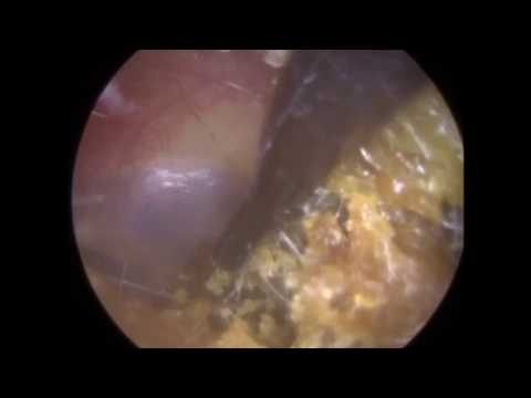 Removing Blocked Ear Wax