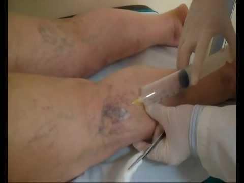 Controllo di vene su varicosity