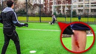 FUßBALL CHALLENGE ENDET BLUTIG (nicht Nachmachen!)