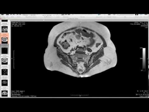 Risonanza magnetica delle immagini dellanca - Quali farmaci