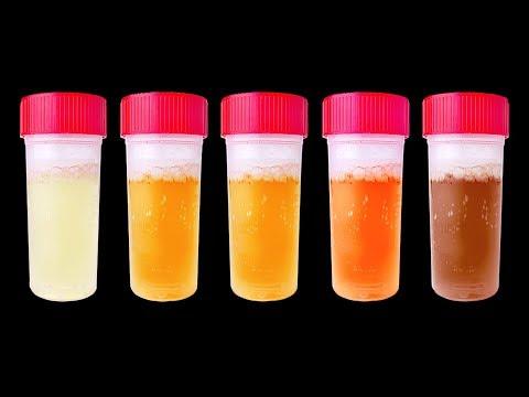 La codificazione da alcolismo e Dimitrovgrad