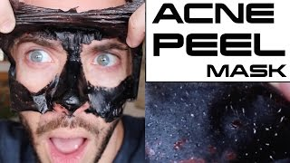 DIY ACNE PEEL OFF MASK USING GLUE??? Does This Sh!t Really Work? | Cheap Tip #258