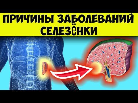 Селезенка симптомы. Основные причины заболеваний селезёнки и методы диагностики